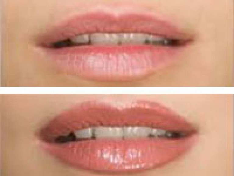 Before-After Full Lips